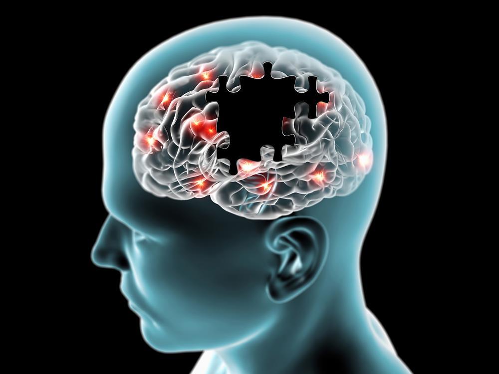 Dementia & Neurology Webinar 2021